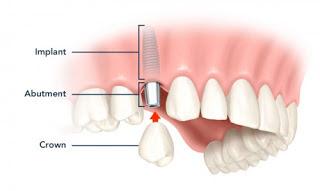Thông tin về kỹ thuật cấy gheps răng implnat Nha khoa