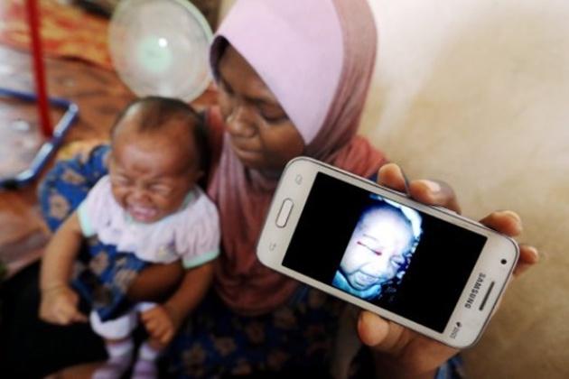 Misteri Bayi Perempuan Menangis Keluar Air Mata Darah Akhirnya Terjawab