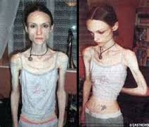 Anoreksia http://www.udan.name
