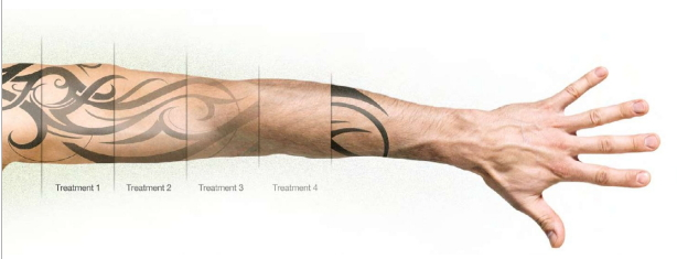 erase tattoo removal how many laser treatments do you need
