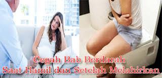 Foto obat ambeien atau wasir untuk ibu menyusui di apotik umum