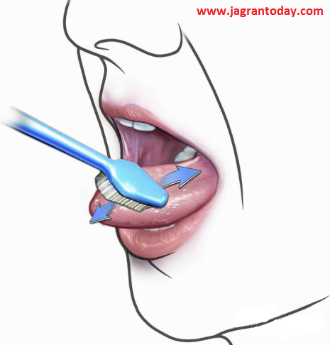 Repair Damage Teeth by Self Treatment