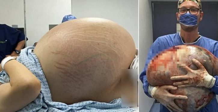 The Belly Of This Woman Did Not Stop Swelling After The Delivery! When The Doctors Operated, They Were Stunned