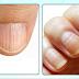 Mancha na unha também pode ser sinal de câncer de pele