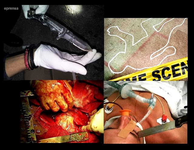 Chófer lesionado con arma blanca