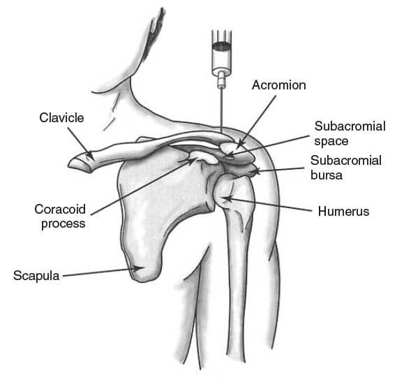 Intra-Articular and Bursa Corticosteroid Injection Nursing Procedure