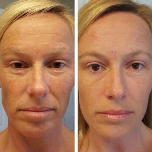 Amazing Facial Workouts And Yoga Face Exercises To Look Younger