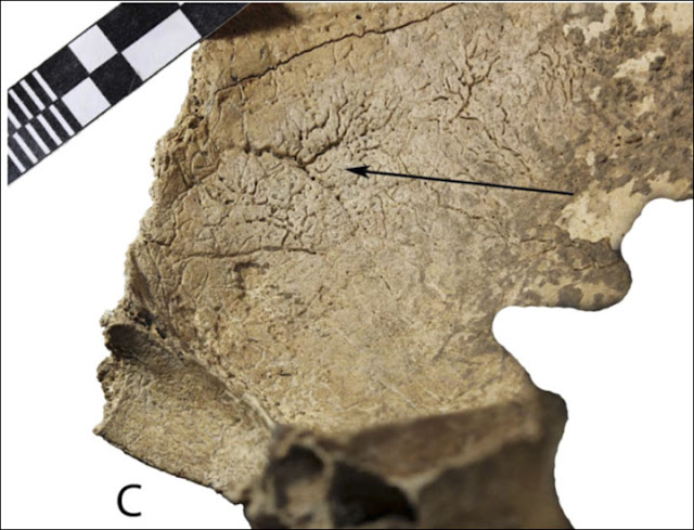 Reconstructing 3,000 year old brain surgery in Western Siberia