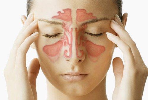 La congestion nasale