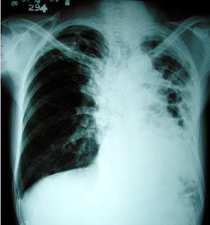 Nursing Diagnosis Ineffective Airway Clearance related to Pulmonary Tuberculosis