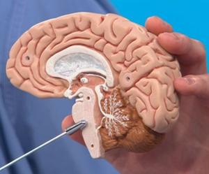 Stroke batang otak