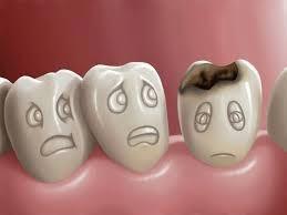 Tips Perawatan Gigi Berlubang Dengan Baik Dan Benar