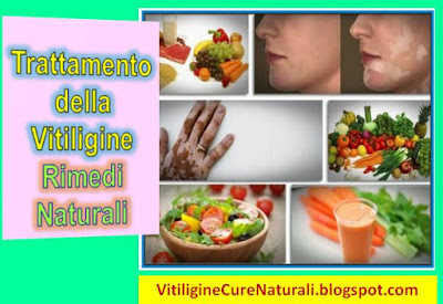 vitiligine-cure-naturali-rimedi-per-curare-macchie-bianche-sulla-pelle