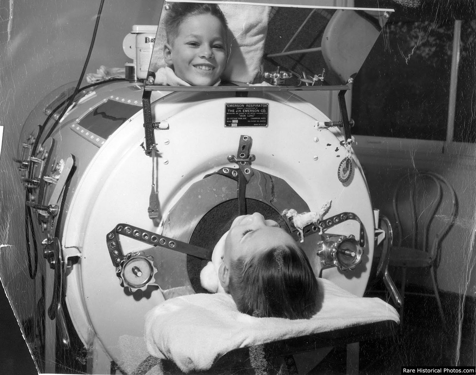 Unable to breathe, patients entered iron lungs, which made use of negative pressure ventilation to compress and depress the chest, simulating respiration.
