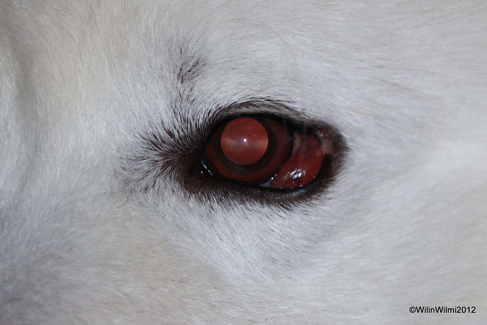 Syöpä Silmässä