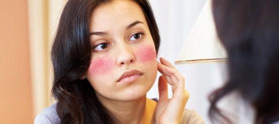Tips Ampuh Mencegah Alergi Karena Kosmetik