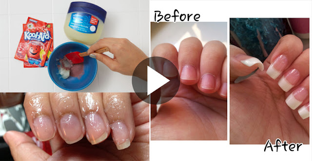 See How To Grow Nails Naturally Within A Few Days!