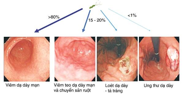 Viêm dạ dày tá tràng nguyên nhân triệu chứng và cách điều trị