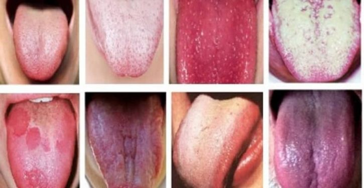 The Color Of Your Tongue Reveals About Health