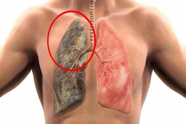 Por quantos deixam de fumar de um tabeks
