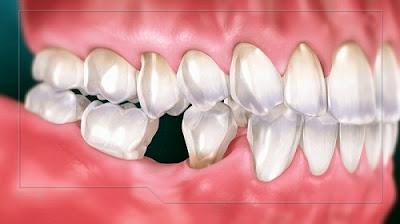 Hình ảnh răng hàm số 6 bị mất