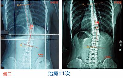 脊椎側彎, 脊椎側彎背架, 脊椎度數,脊椎側彎矯正, 脊椎側彎治療,脊椎側彎 復健