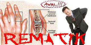 Gambar Penyebab rematik | obat rematik kulit manggis