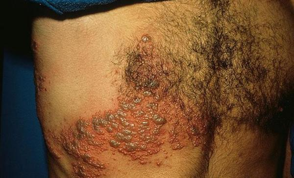 Seroconversion Hiv Rash