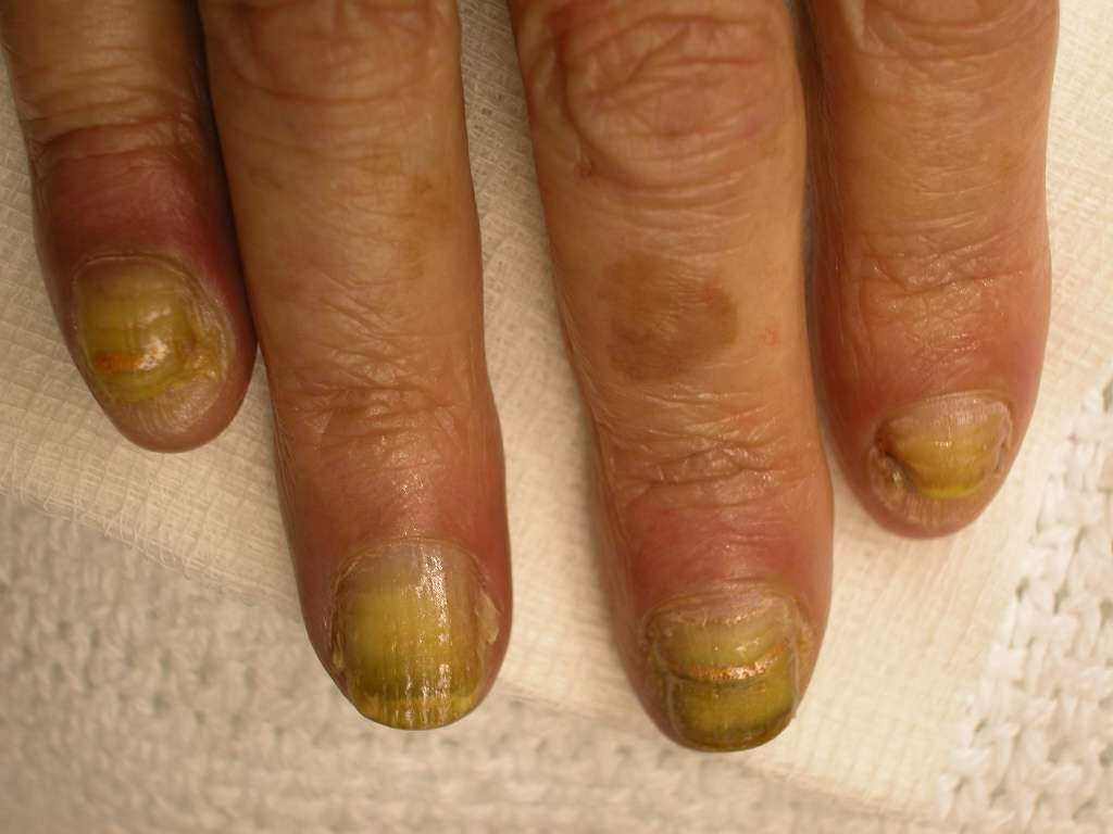 What causes finger nails to split - Awesome Nail