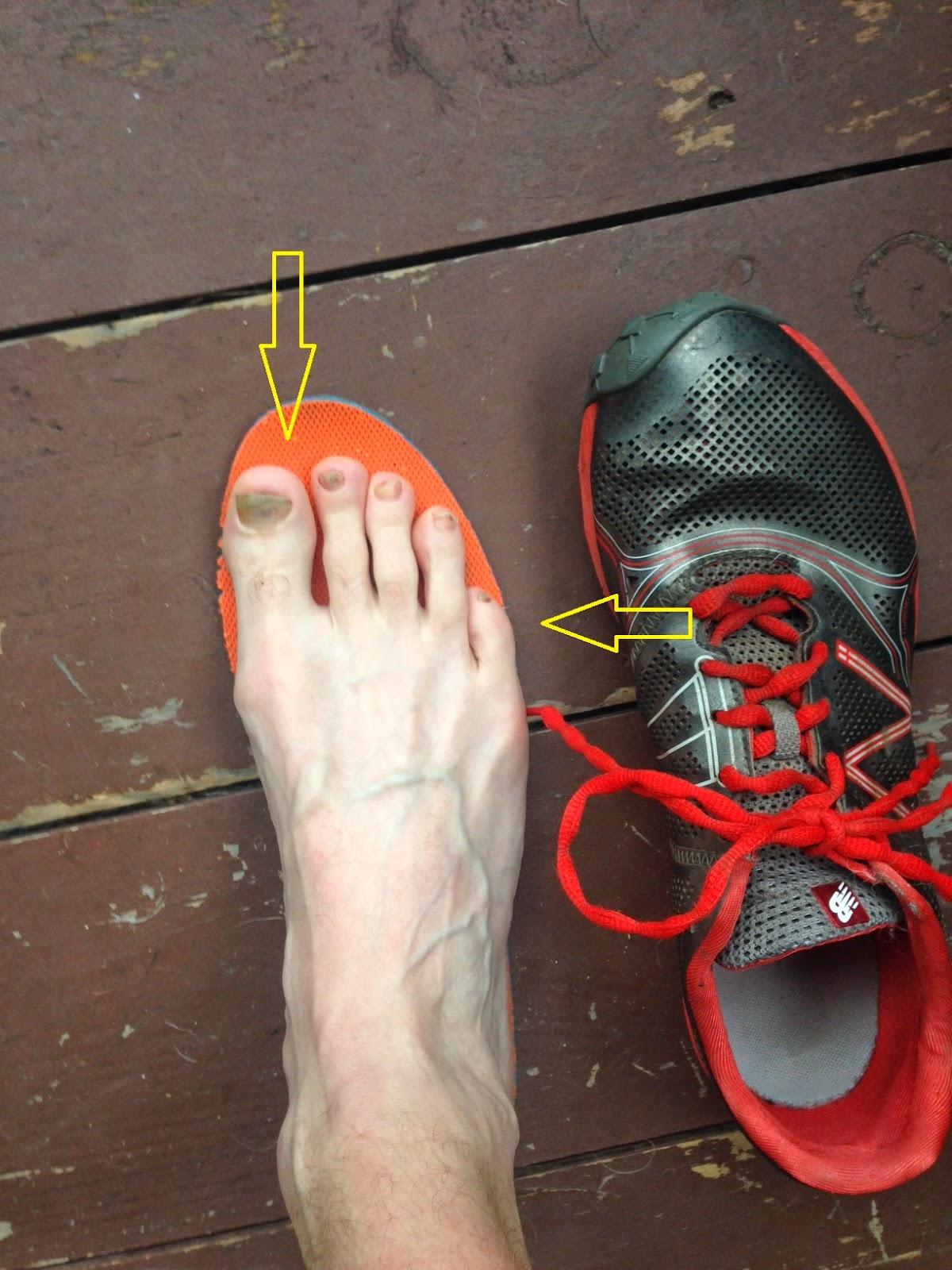 Pointy Shoes Too Narrow Toe Box