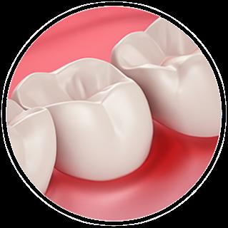 Dents sensibles pendant la grossesse