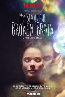 My Beautiful Broken Brain (2014) Poster
