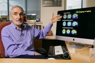 Alzheimer's Protein Growth in Aging Brains