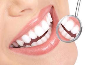 Miami Beach teeth Whitening