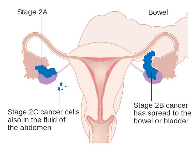 Asuhan Keperawatan Kanker Ovarium - Intervensi