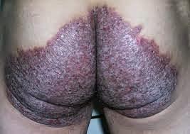 Obat gatal menahun pada bokong