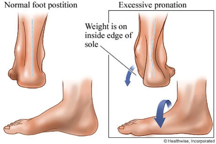 Flatfoot, Pronation