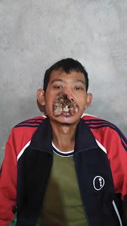 Akibat Sering Cabut Bulu Hidung Mahmudi Hilang Hidung