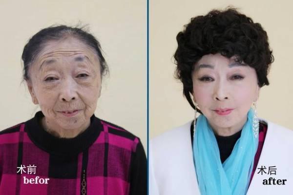 Demi Menikahi Pria Pujaan Hatinya, Nenek Tua Ini Relakan Hartanya Untuk Menghilangkan Keriput Wajahnya