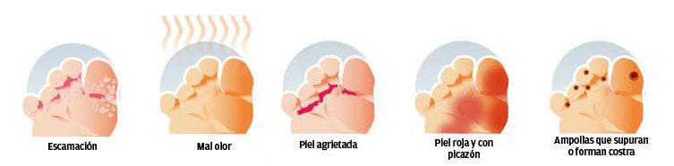 sintomas de hongos en los dedos de los pies