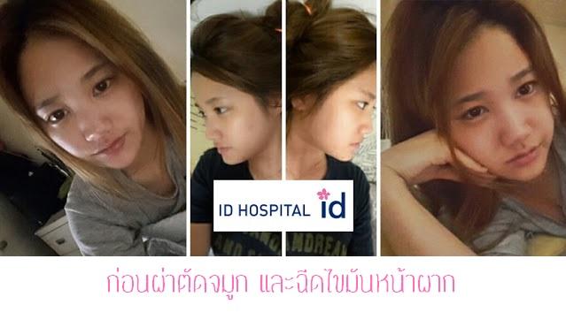 Review ID Hospital : รีวิวศัลยกรรมจมูกบาร์บี้ไลน์ และฉีดไขมันหน้าผาก จากคุณฮงมินจู