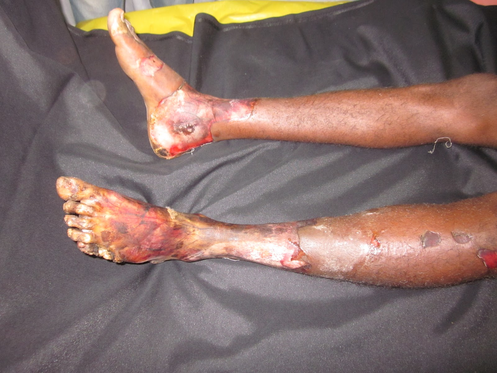 High Voltage Electrical Contact Burns