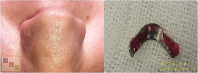 Breathe Implant àWengen çıkarılması - Revizyon burun estetiği ameliyatı