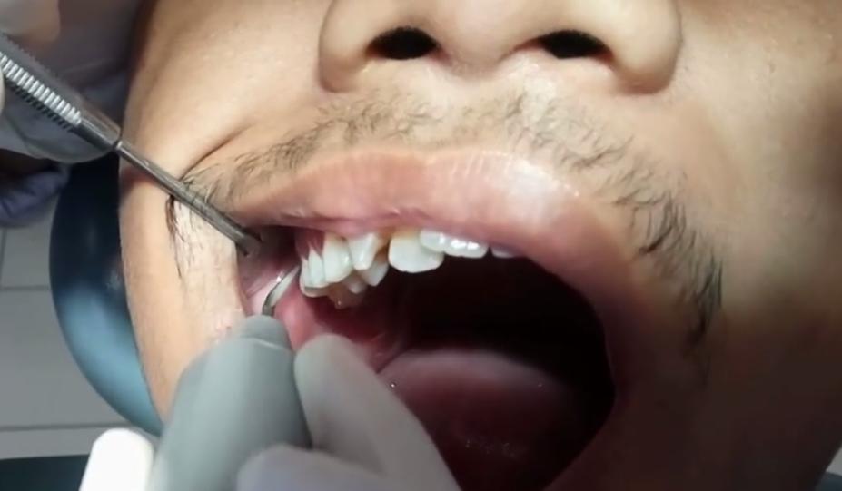 18 Cara Membersihkan Karang Gigi Dengan Bahan Alami Secara Cepat