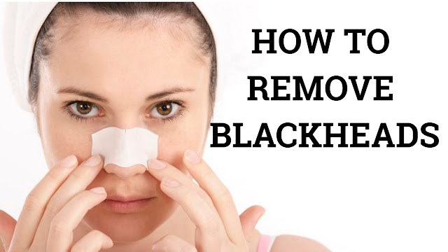 how to remove popping blackheads-blackheads being removed in 2018