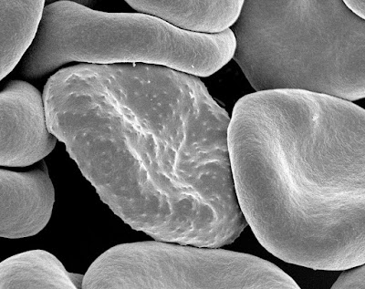 eritrosit yang terinfeksi plasmodium falsiparum falciparum malaria anopheles stephensi anopeles tertiana tropikana tropicana inflamasi sel darah merah knop kenop mikroskop elektron praktikum laboratorium kedokteran parasitologi mikrobiologi infeksi tropik