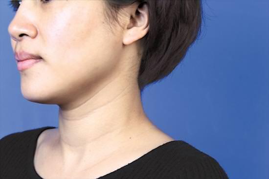 別讓妳的脖子變成年輪!脖子這樣保養。一條頸紋都沒有!看起來年輕10歲!