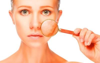 Toner muka untuk kulit sensitif