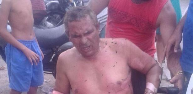 Resultado de imagem para Morre cobrador cadeirante que teve 90% do corpo queimado em ataque a ônibus em Fortaleza