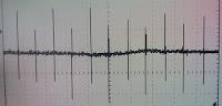 Señal generada en el conmutador; afectada por una modulación de 60Hz.